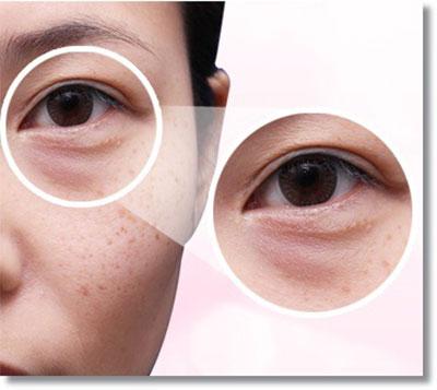 giải pháp cho bọng mỡ mắt