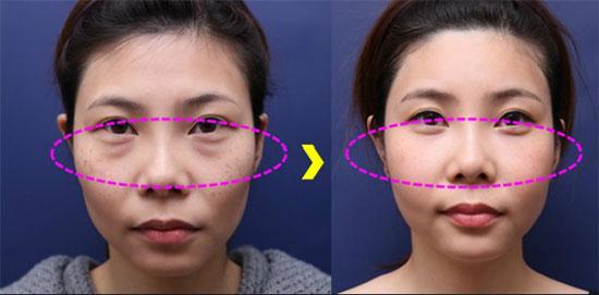 hình ảnh trước sau lấy mỡ dưới mắt