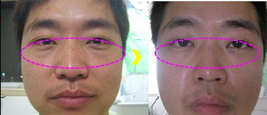 hình ảnh trước sau khi lấy mỡ dưới mí mắt
