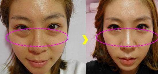 kết quả lấy mỡ dưới mí mắt