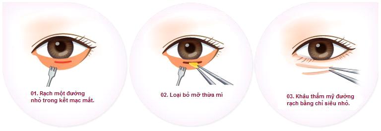 lay-mo-da-thua-mi-duoi-3