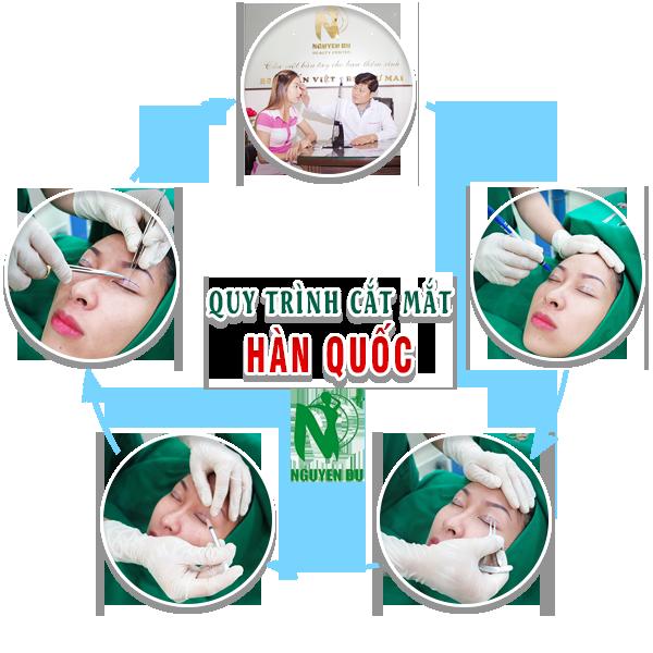 qui trình cắt mắt tại nguyễn du