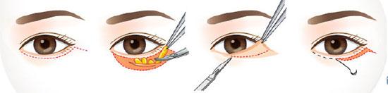 cắt mí mắt dưới
