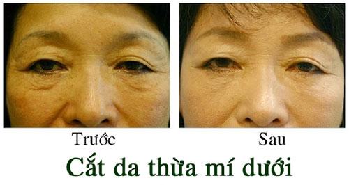 hình ảnh trước sau cắt mí mắt dưới